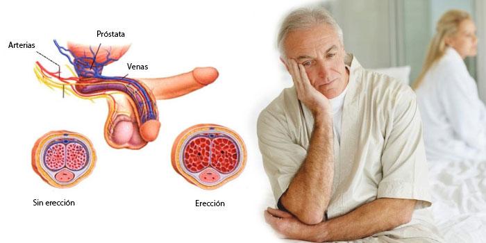 próstata cuánto afecta la erección